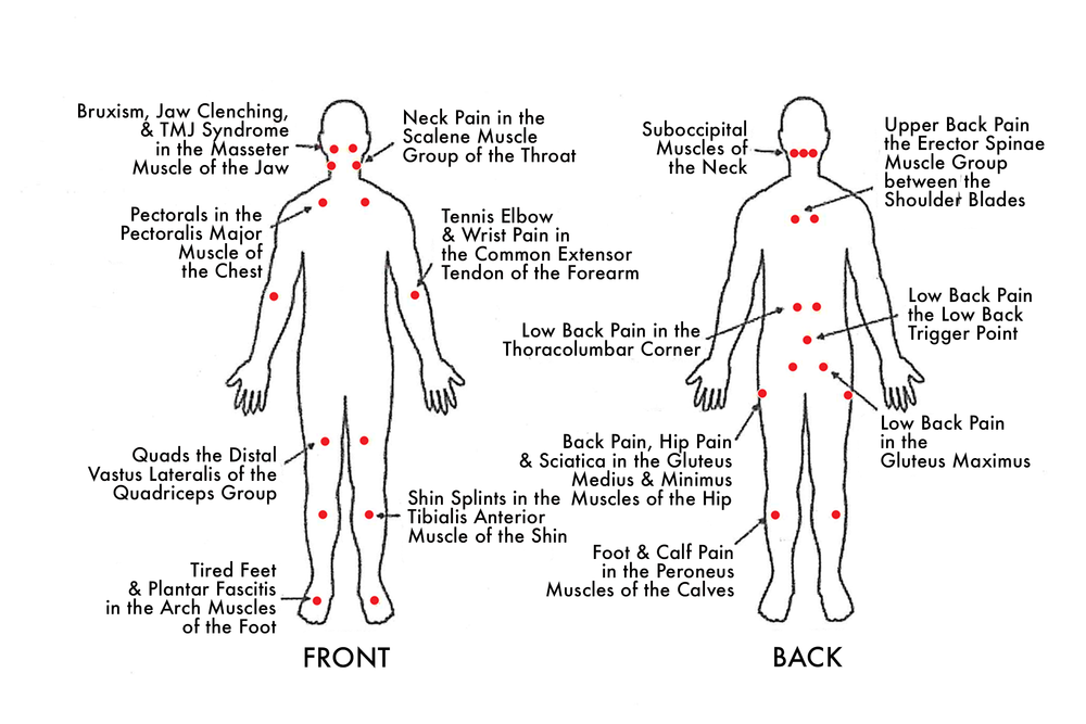 Trigger points in the body